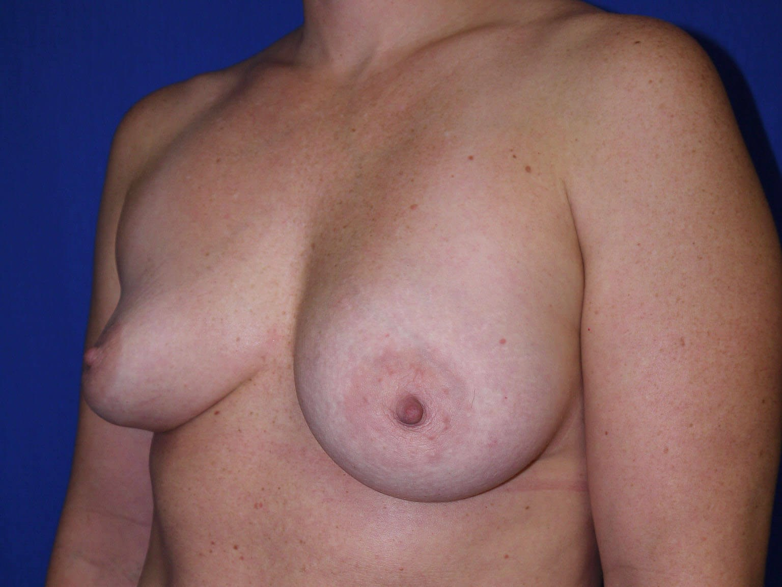 Breast Revision Before - Left Oblique View