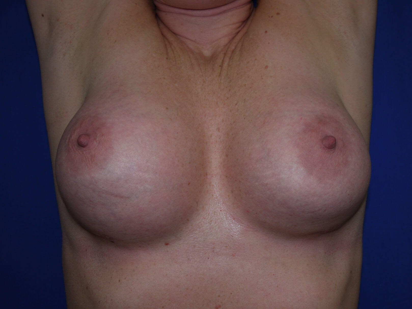 Breast Revision After - Hands Up view