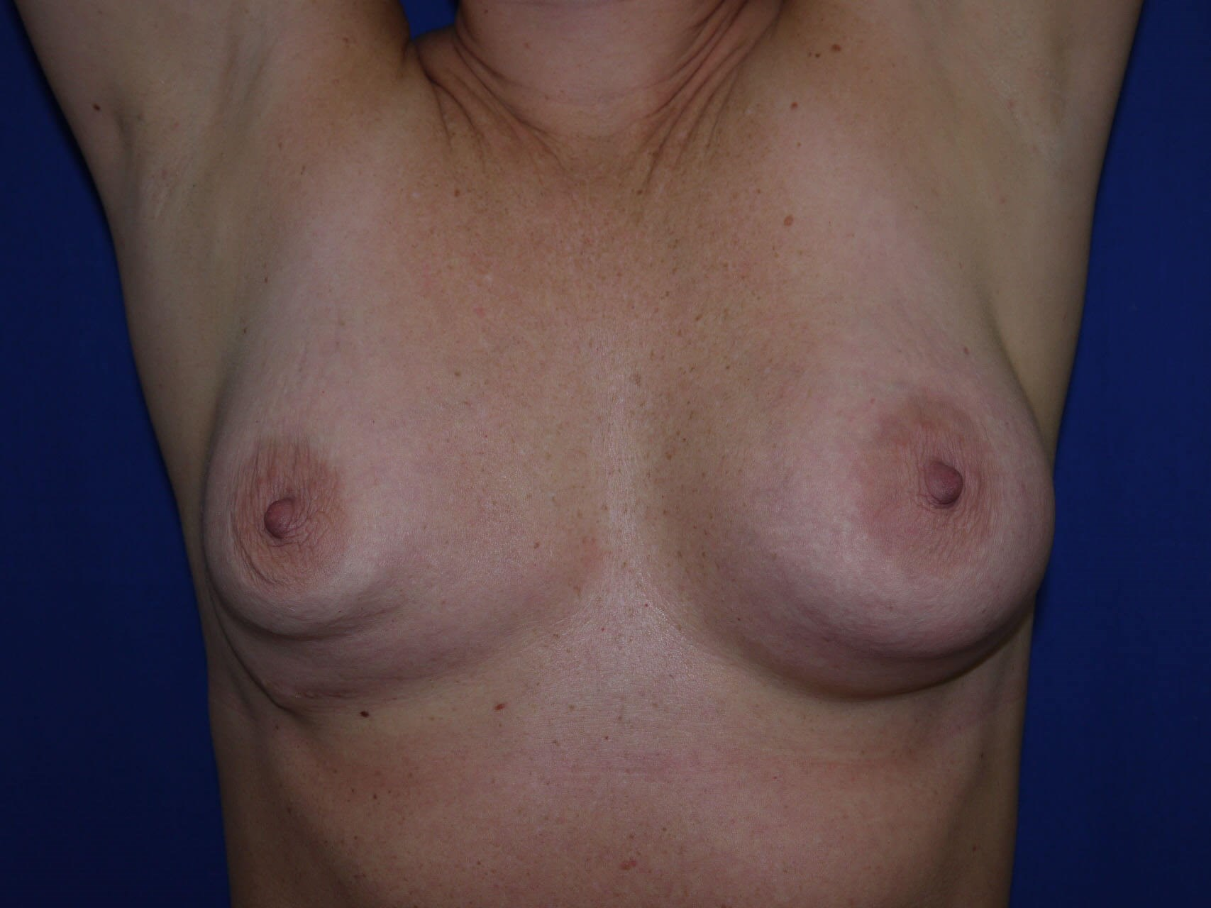 Breast Revision Before - Hands Up view