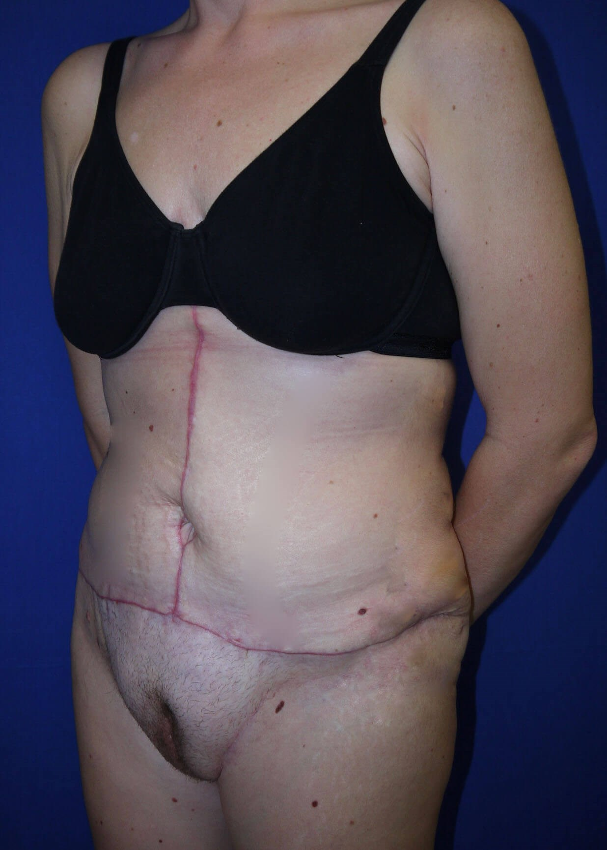 Tummy Tuck After - Left Oblique