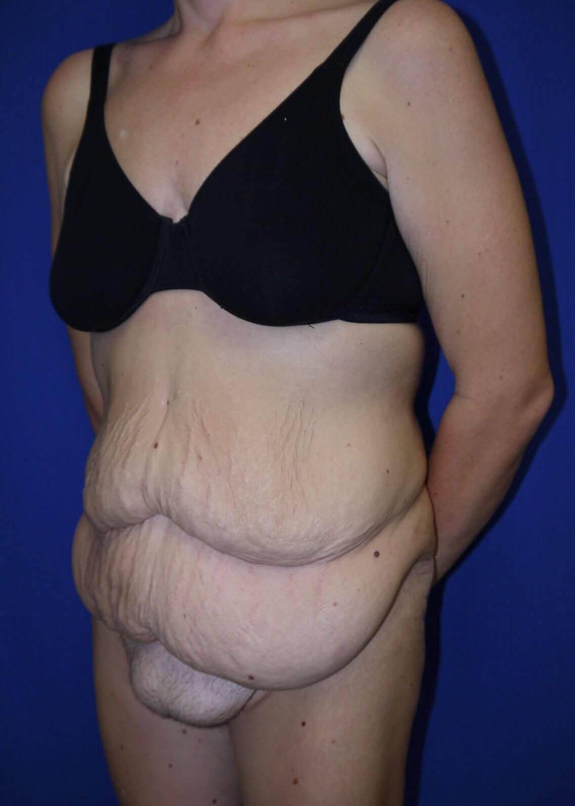 Tummy Tuck Before - Left Oblique