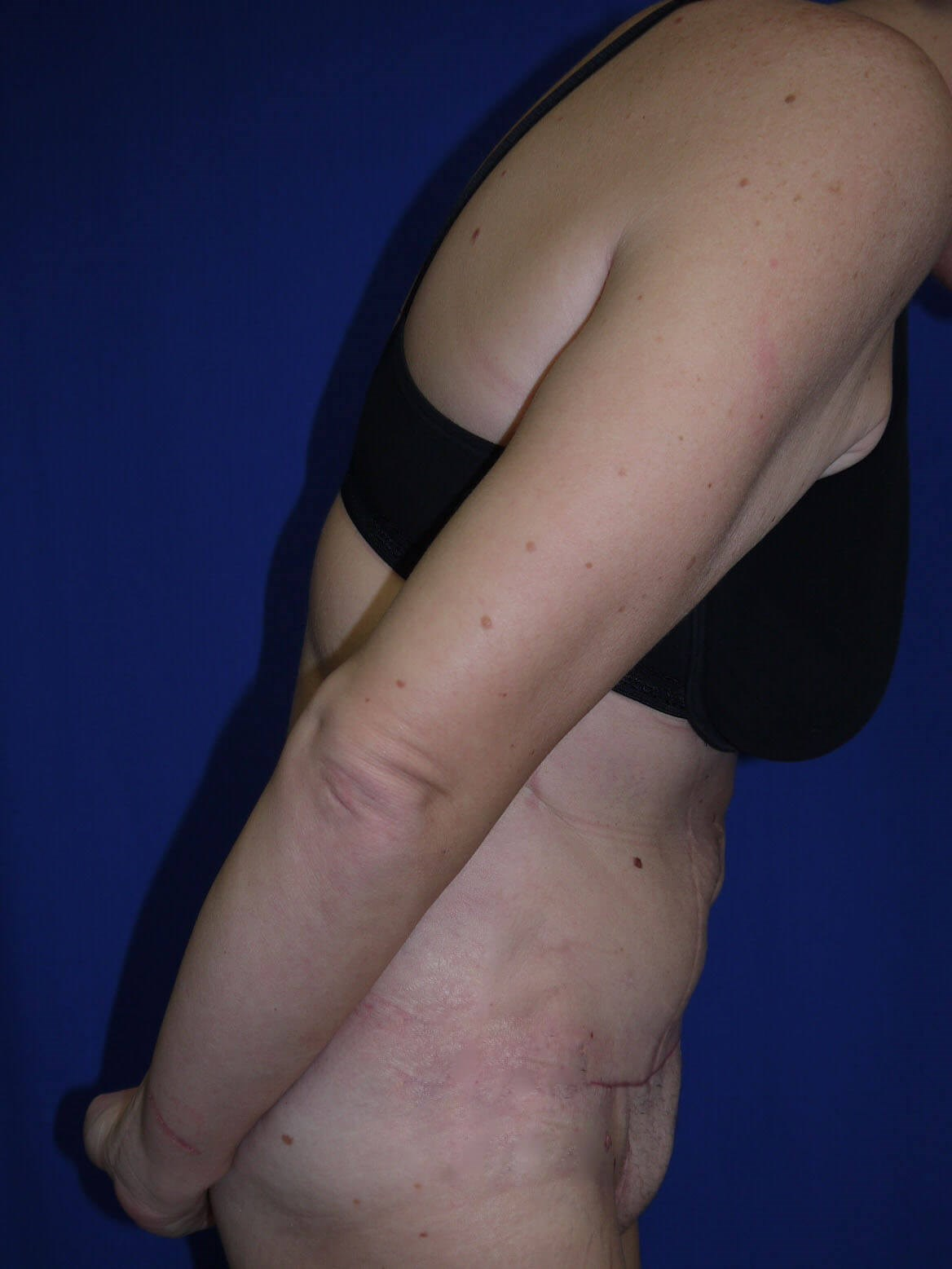 Tummy Tuck After - Divers View