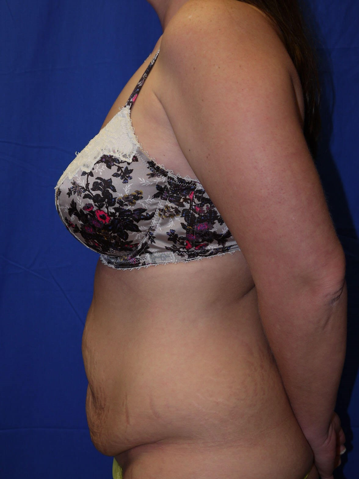 Tummy Tuck Before - Left Side