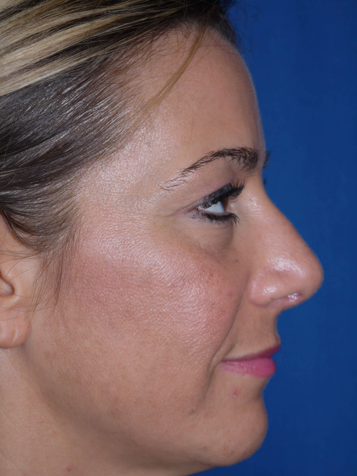 Rhinoplasty after - Right Side