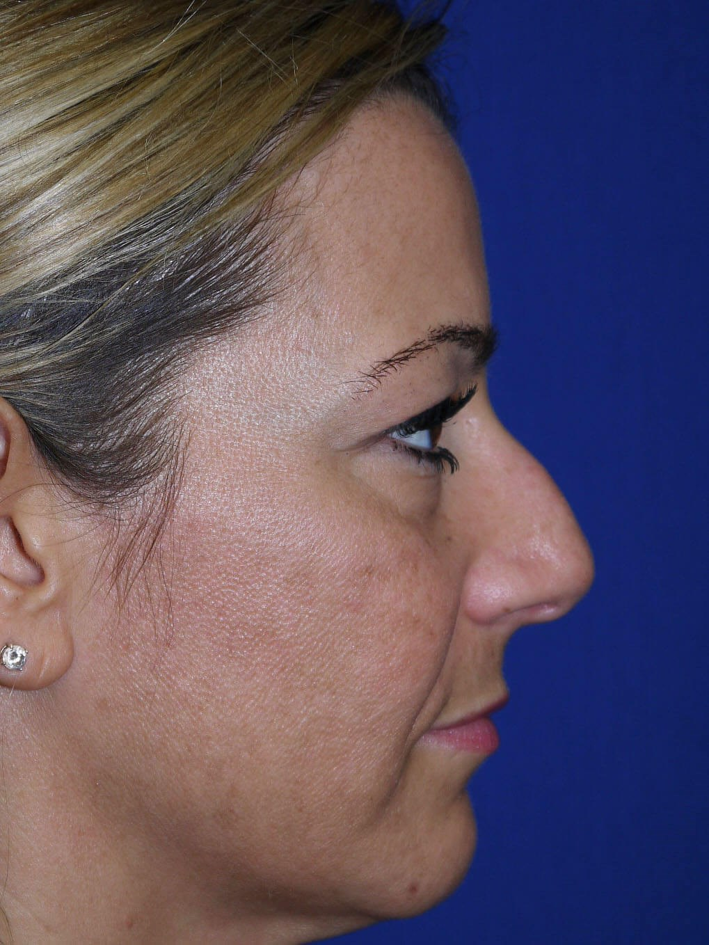 Rhinoplasty Before - Right Side