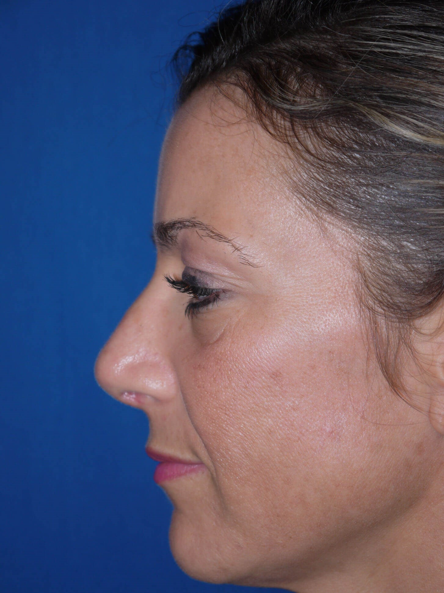Rhinoplasty after - Left Side
