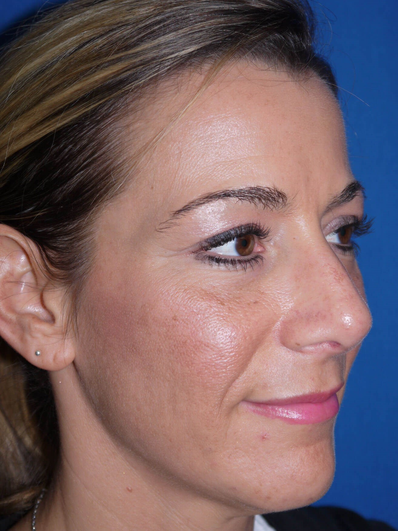 Rhinoplasty Before - Right Oblique View