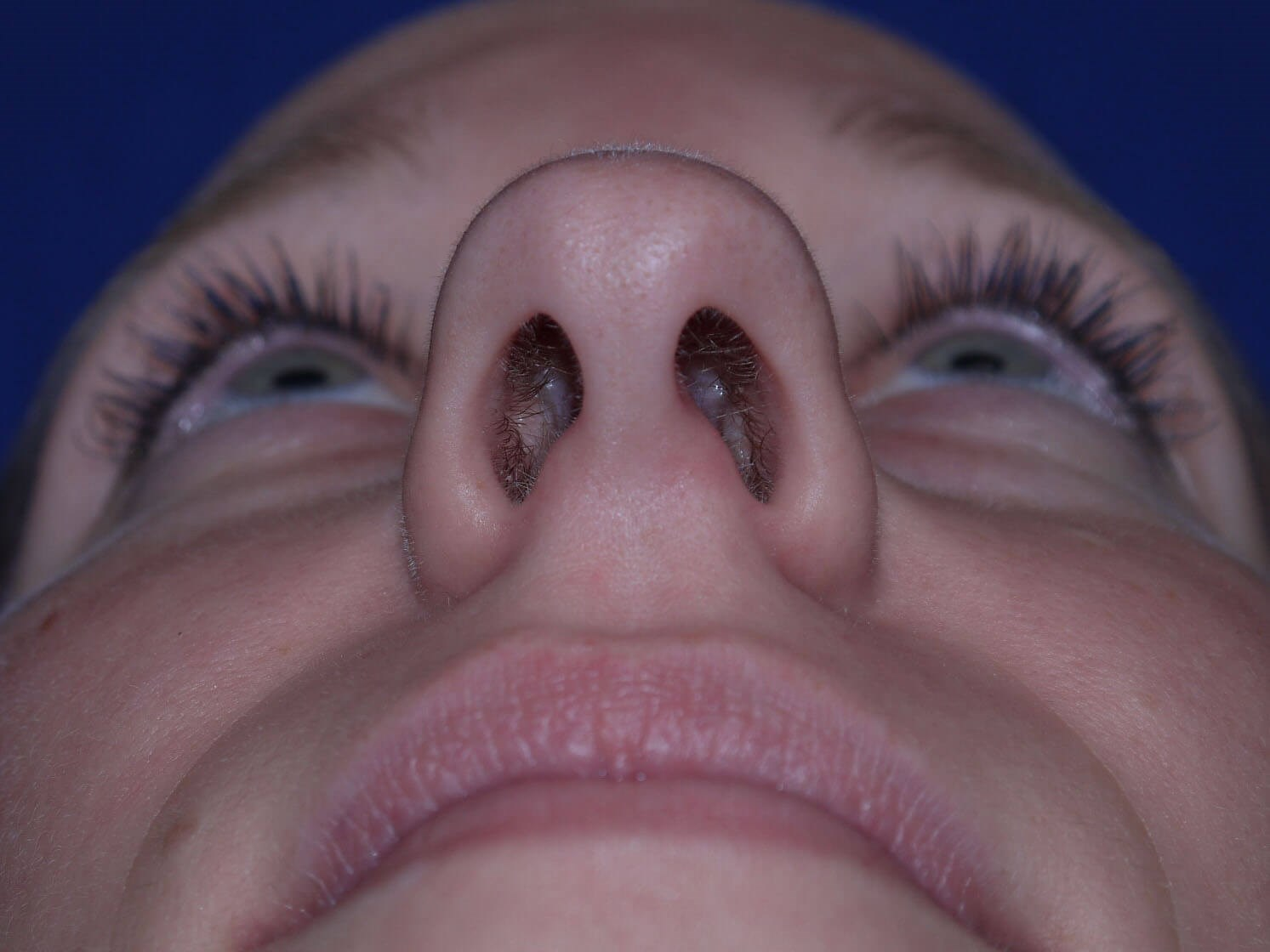 Rhinoplasty Before - Worm's Eye View