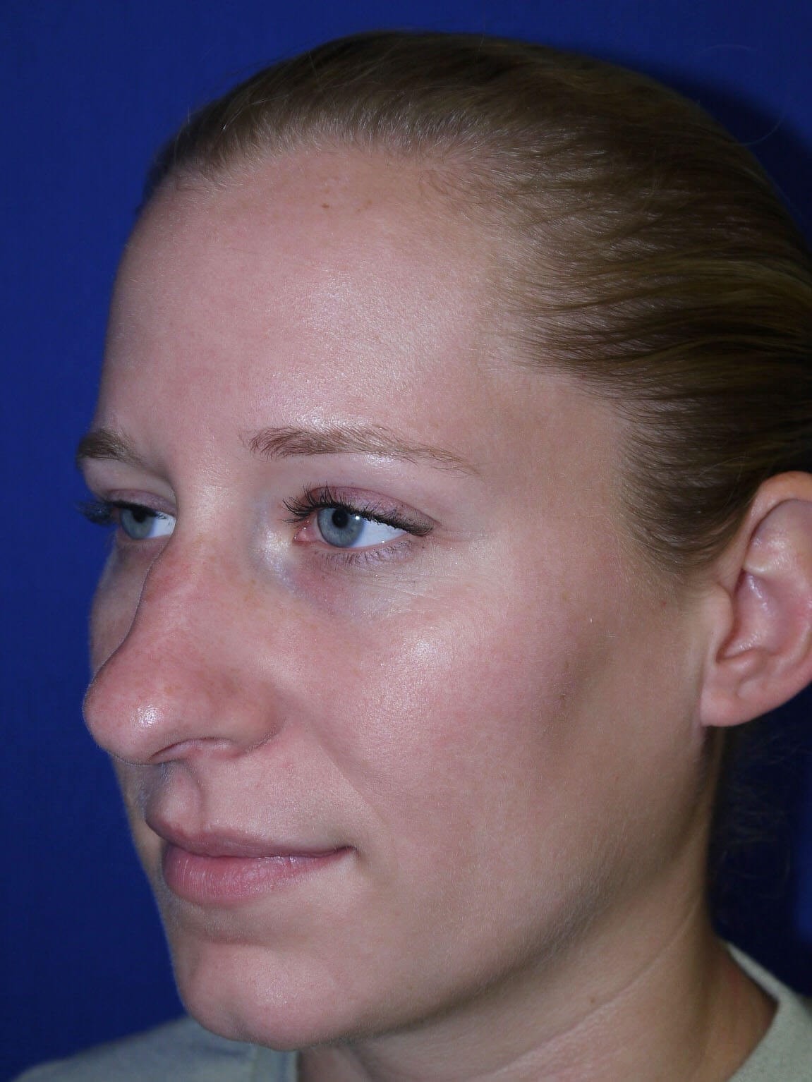 Rhinoplasty Before - Left Oblique View