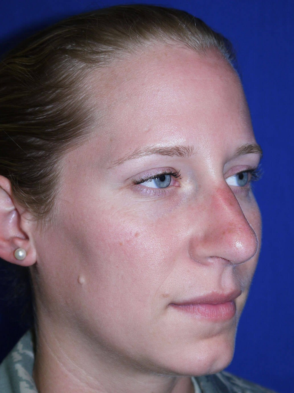 Rhinoplasty After - Right Oblique View