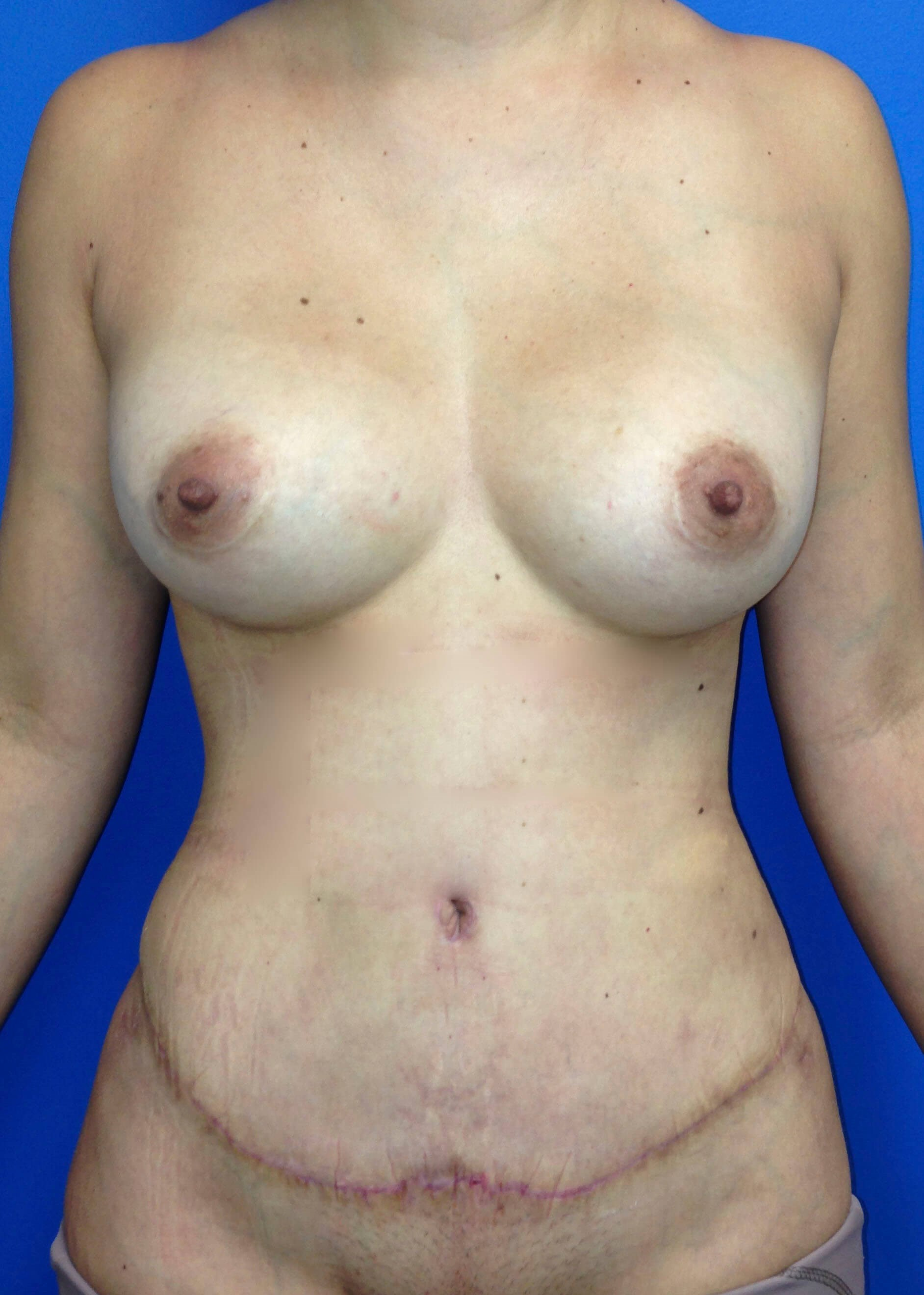 After Tummy Tuck - Front View