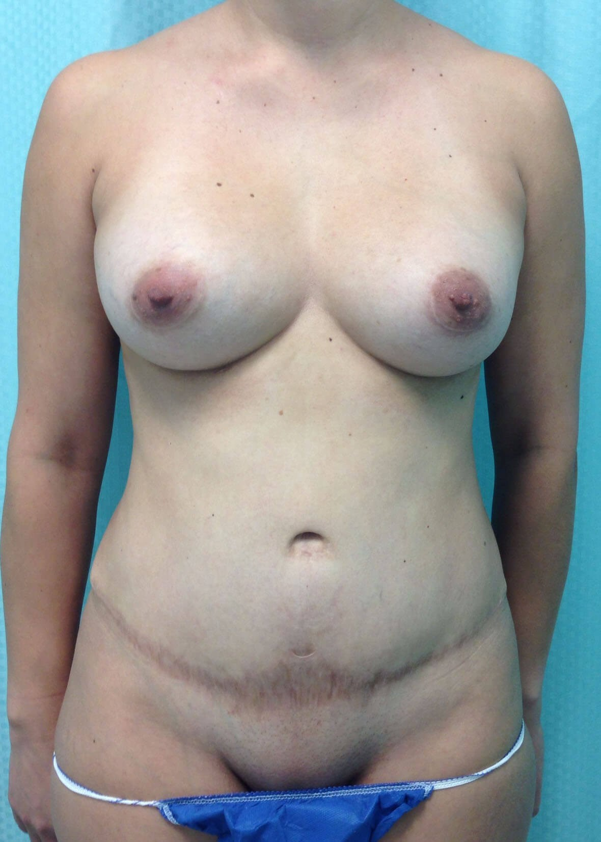 Before Tummy Tuck - Front View