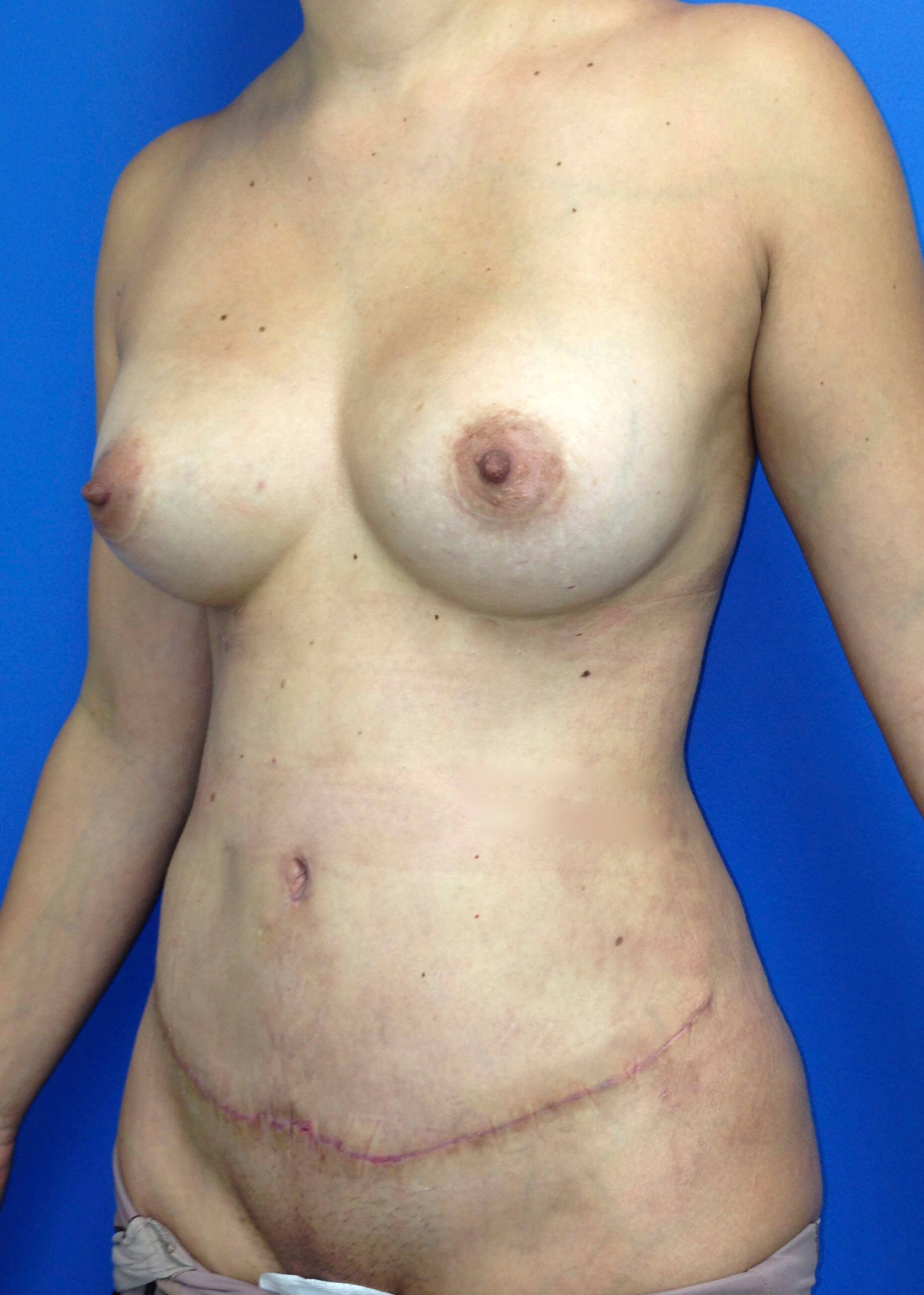 After Tummy Tuck Left Oblique View - Left Oblique View