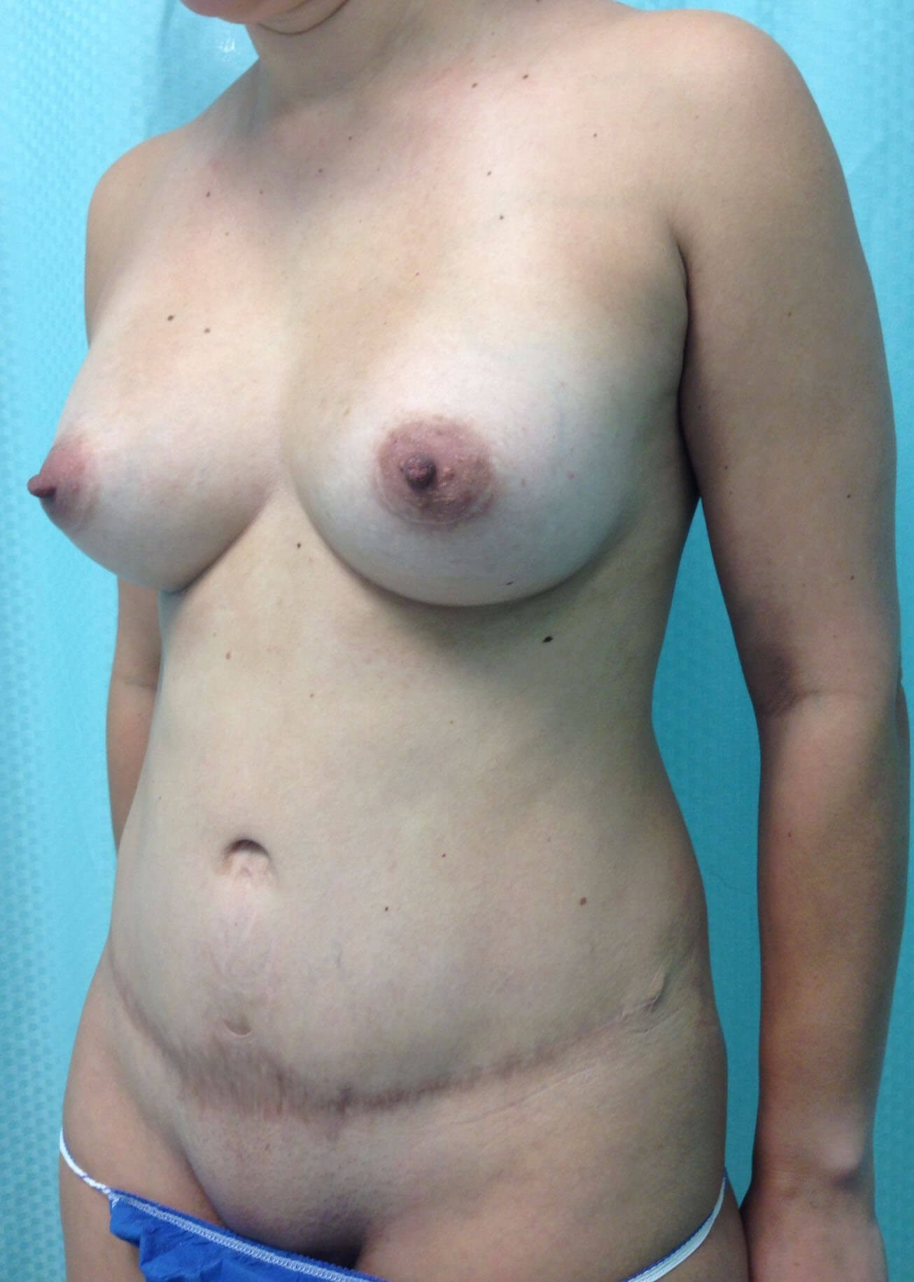 Before Tummy Tuck Left Oblique View - Left Oblique View