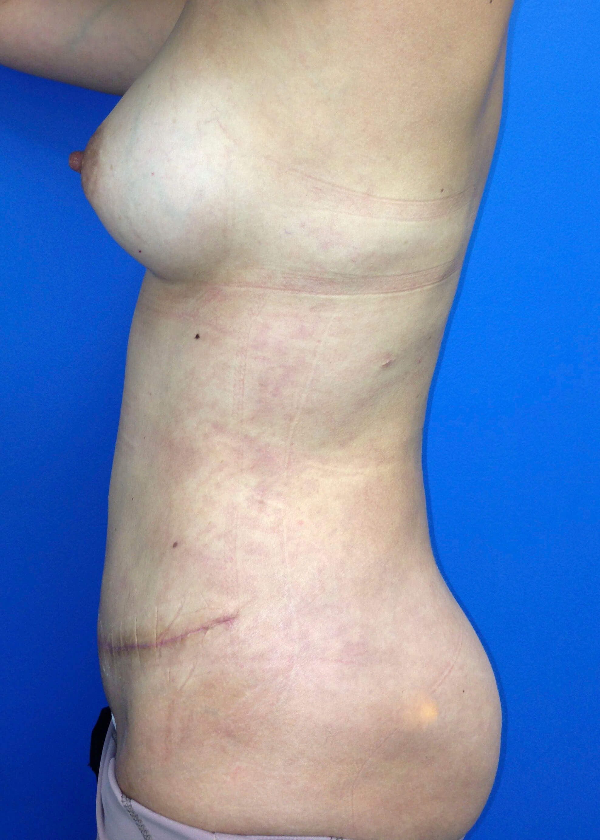 After Tummy Tuck Left Side - Left Side