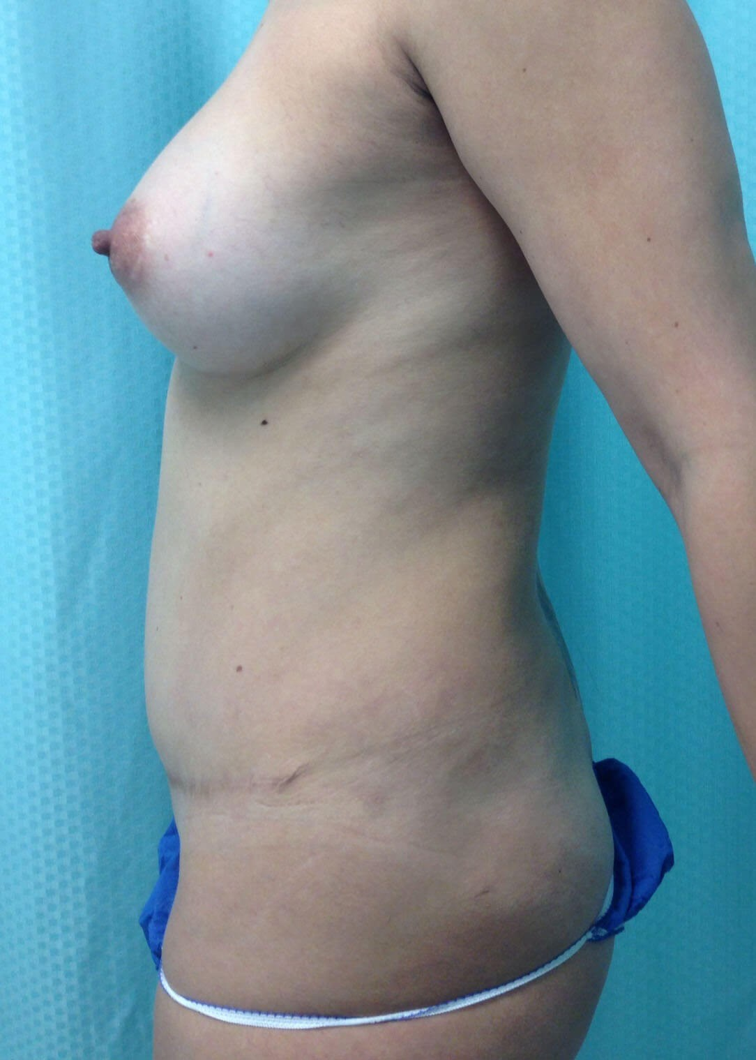 Before Tummy Tuck Left Side - Left Side
