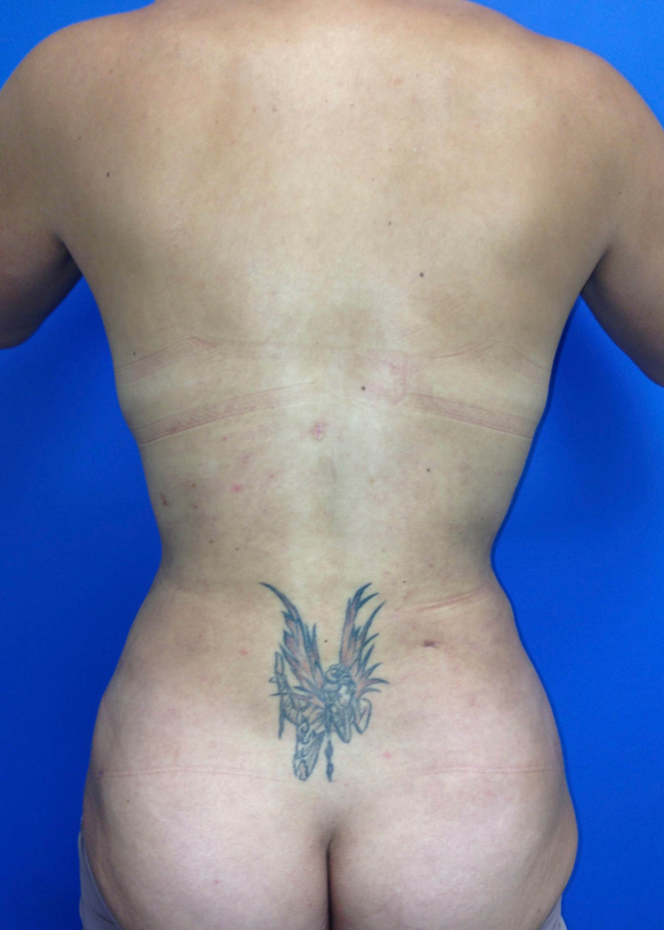 After Tummy Tuck Back View - Back View
