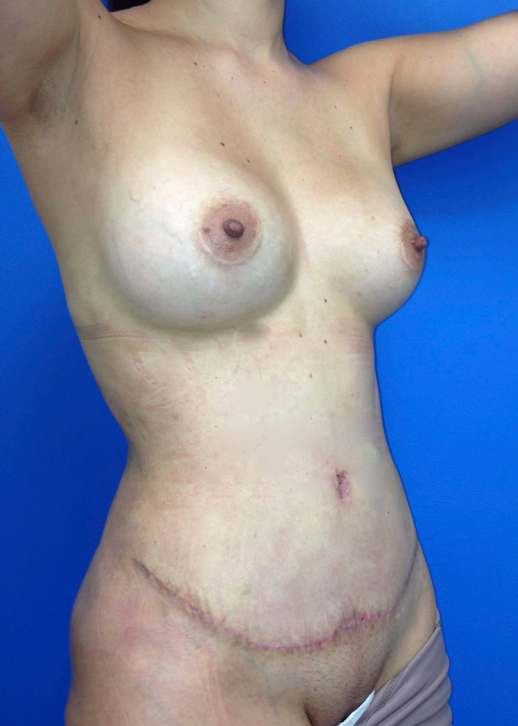 After Tummy Tuck Right Oblique View - Right Oblique View