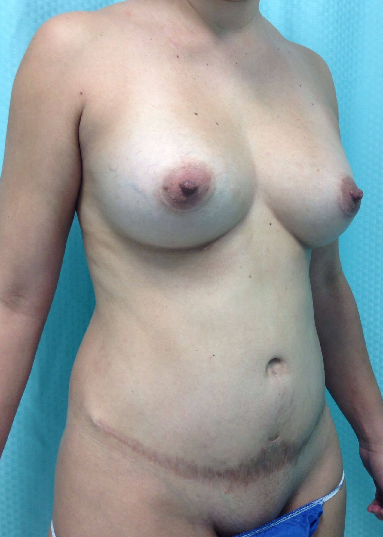 Before Tummy Tuck Right Oblique View - Right Oblique View
