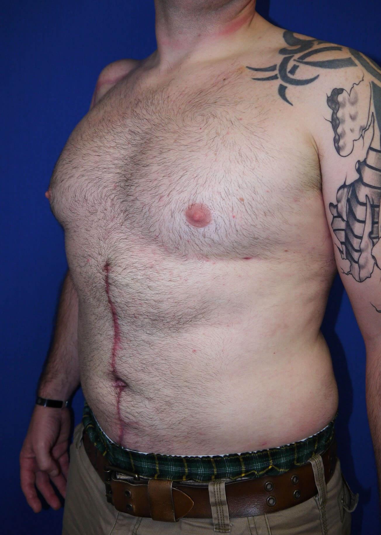 Liposuction after - Left Oblique View View