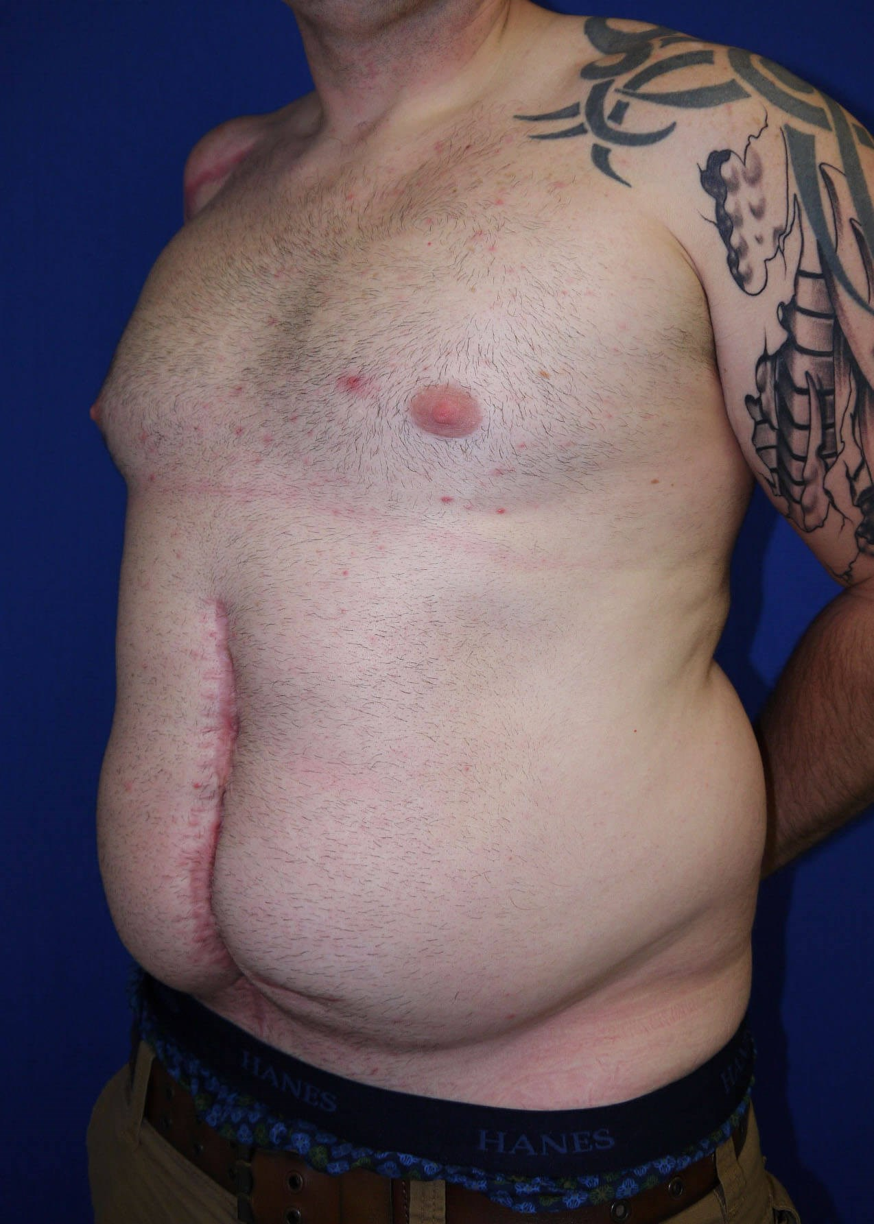 Liposuction Before - Left Oblique View View