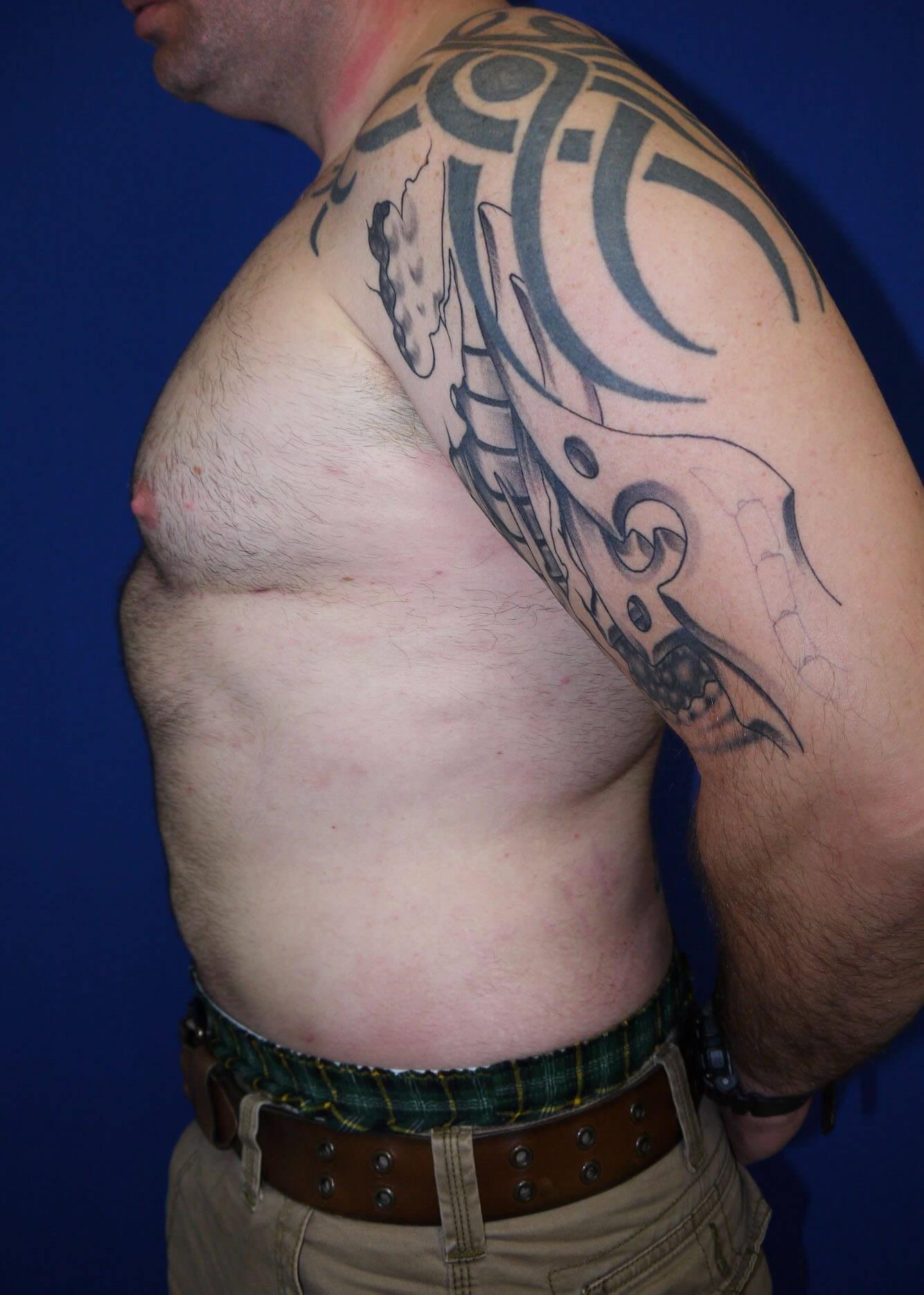 Liposuction after - Left Side