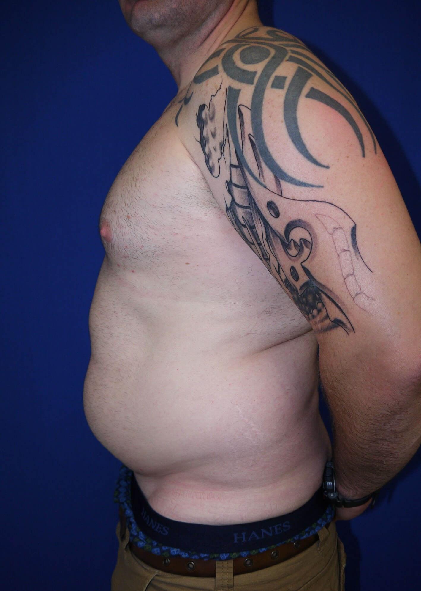 Liposuction Before - Left Side
