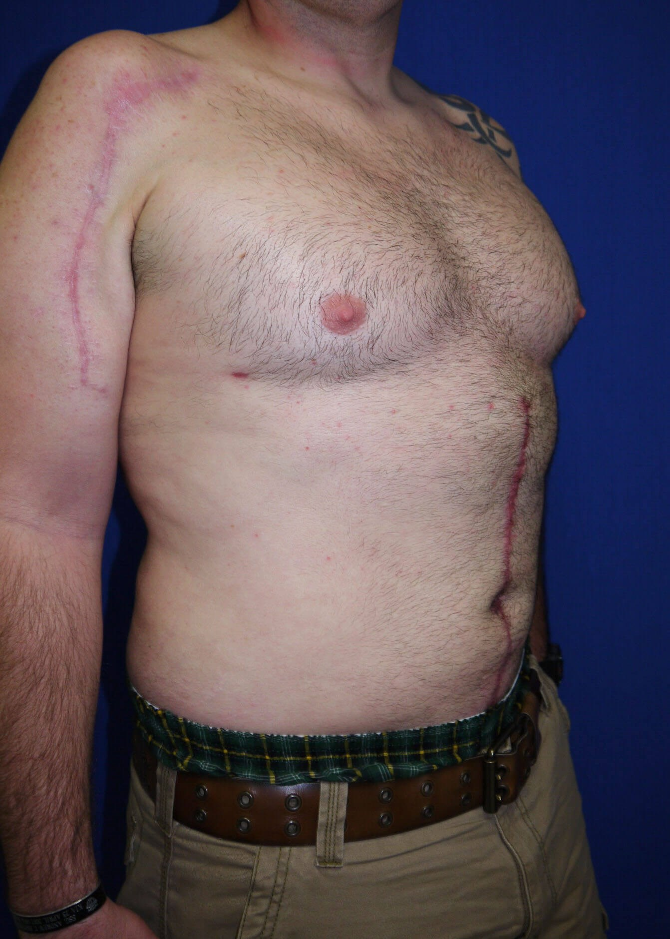 Liposuction after - Right Oblique View