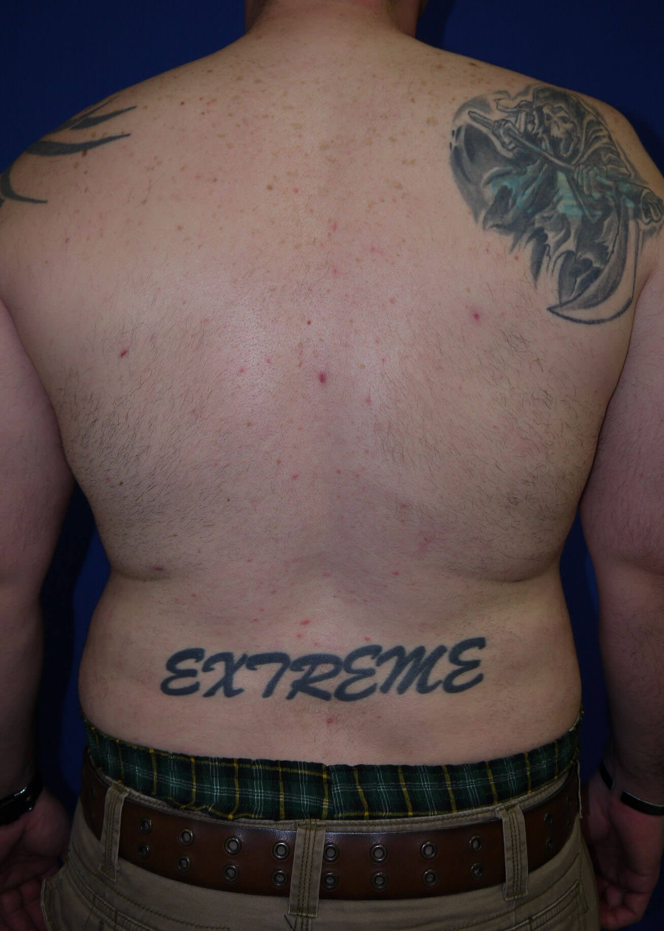 Liposuction after - Back View