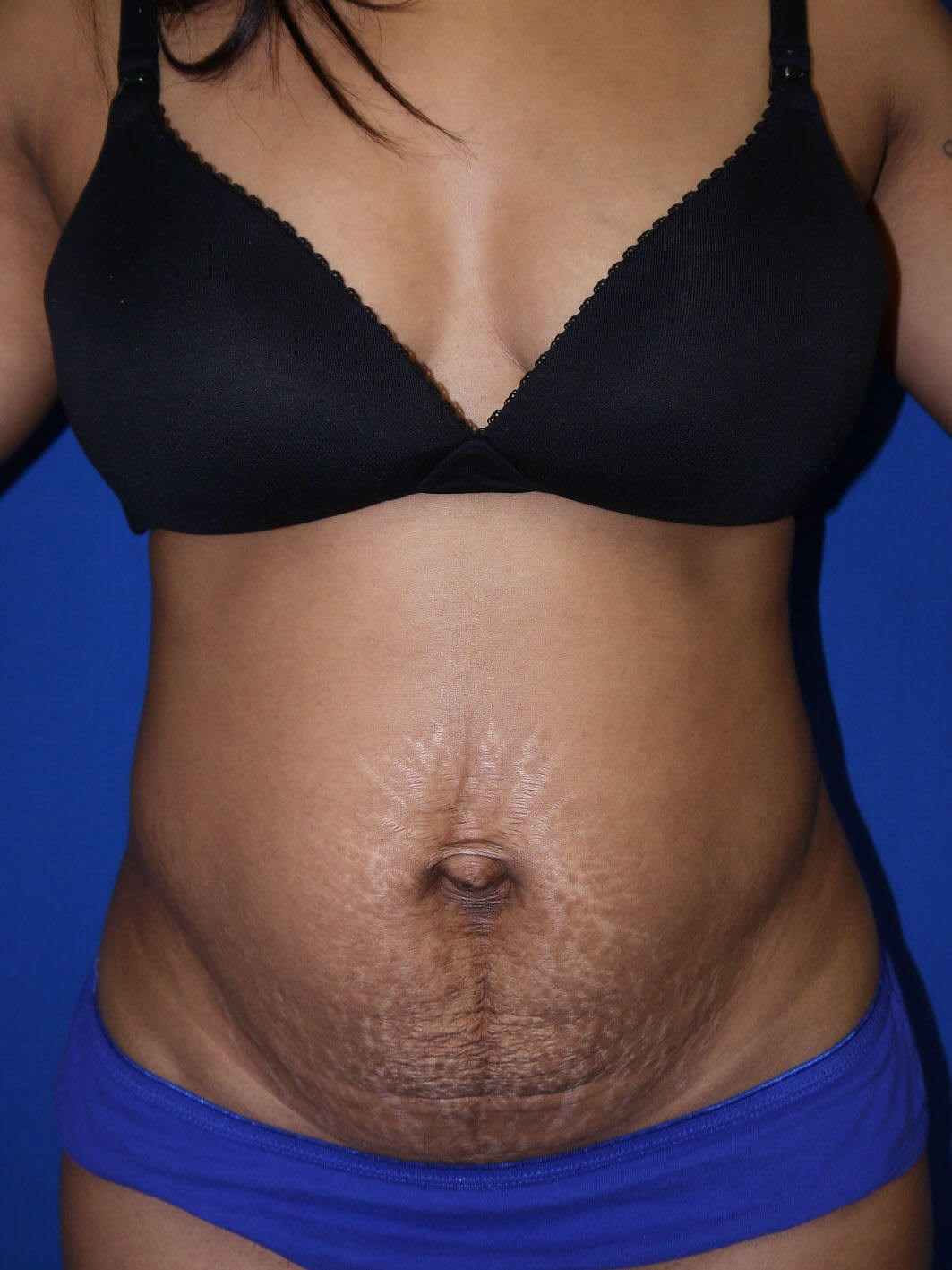 Tummy Tuck Before  - Front View