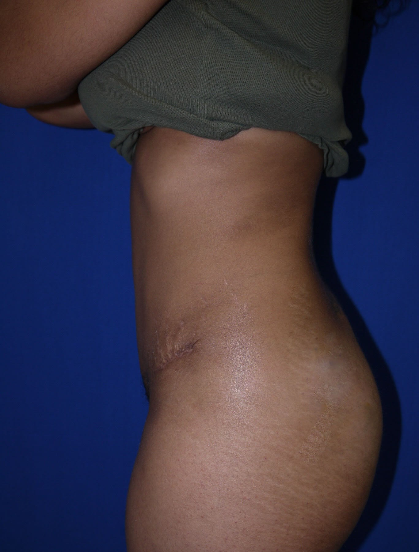 Tummy Tuck after  - Left Side