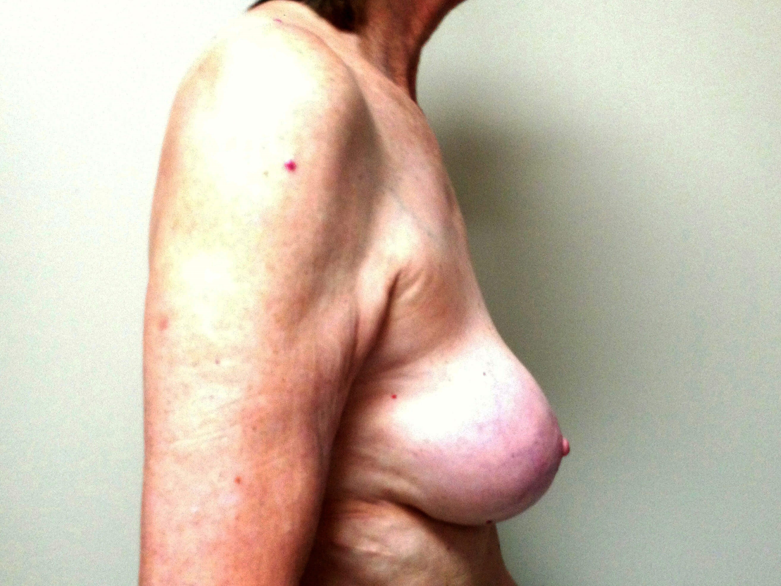 Breast Revision Before - Right Side