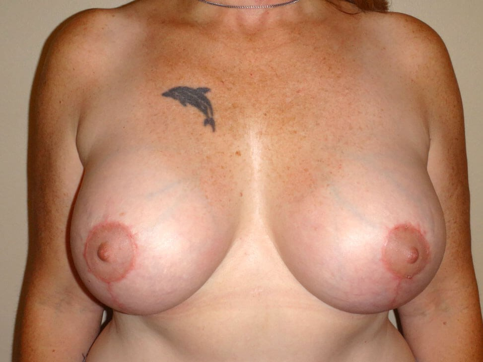 Breast Revision After - Front View