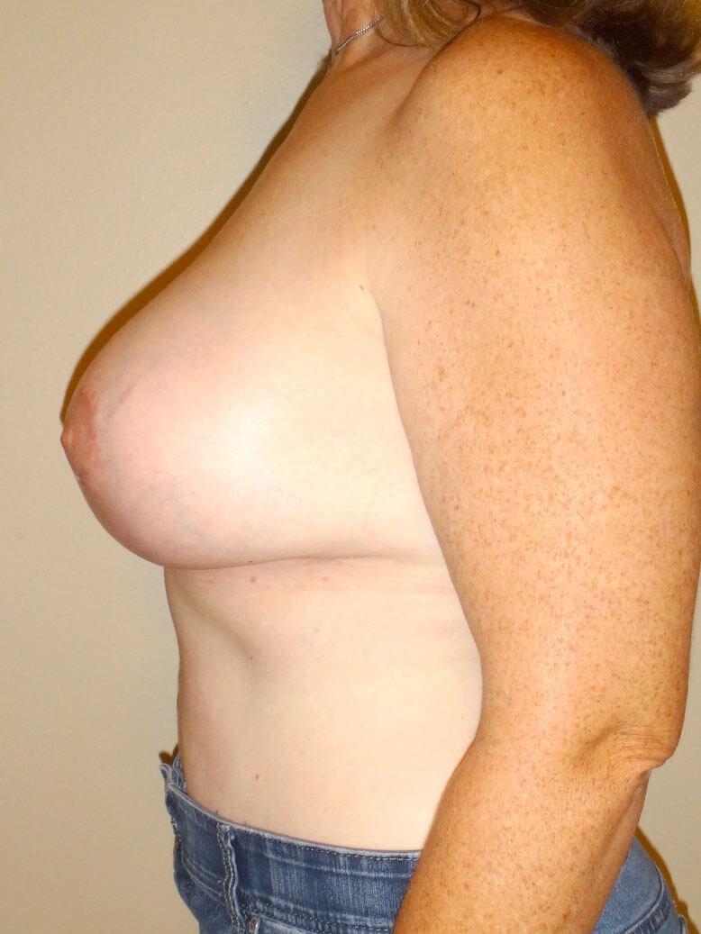 Breast Revision After - Left Side