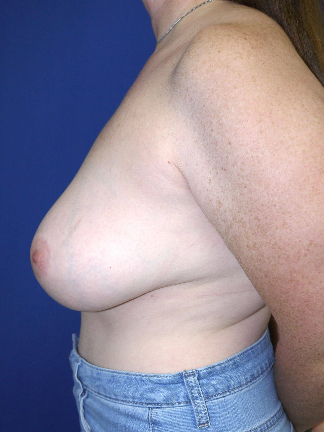 Breast Revision Before - Left Side