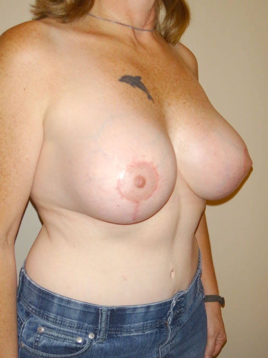 Breast Revision After - Right Oblique View