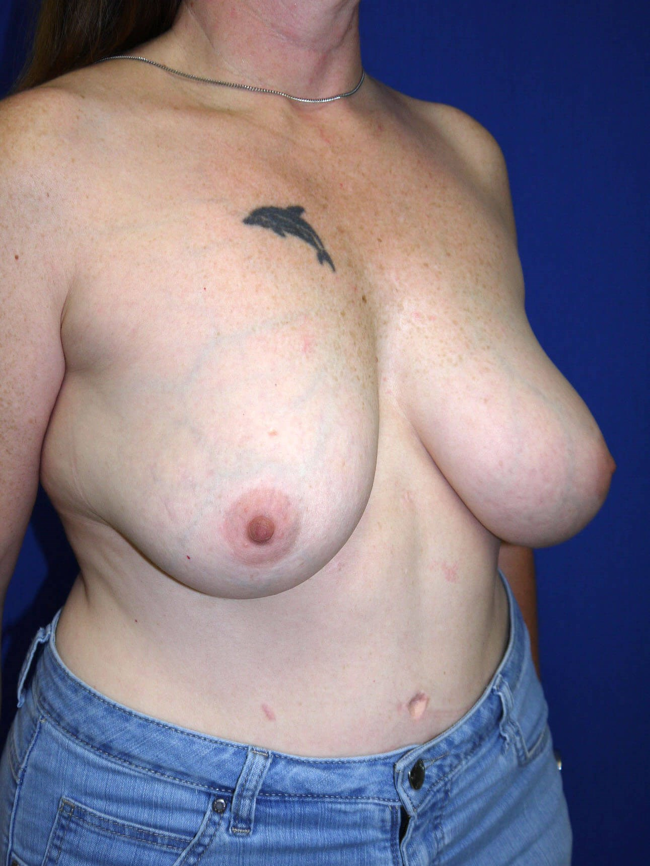 Breast Revision Before - Right Oblique View