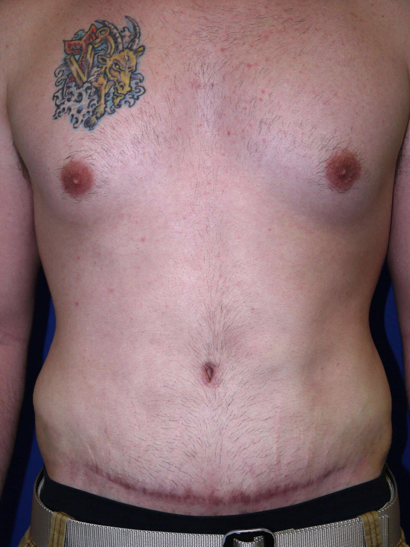 After Tummy Tuck After Weight Loss Surgery - Front View