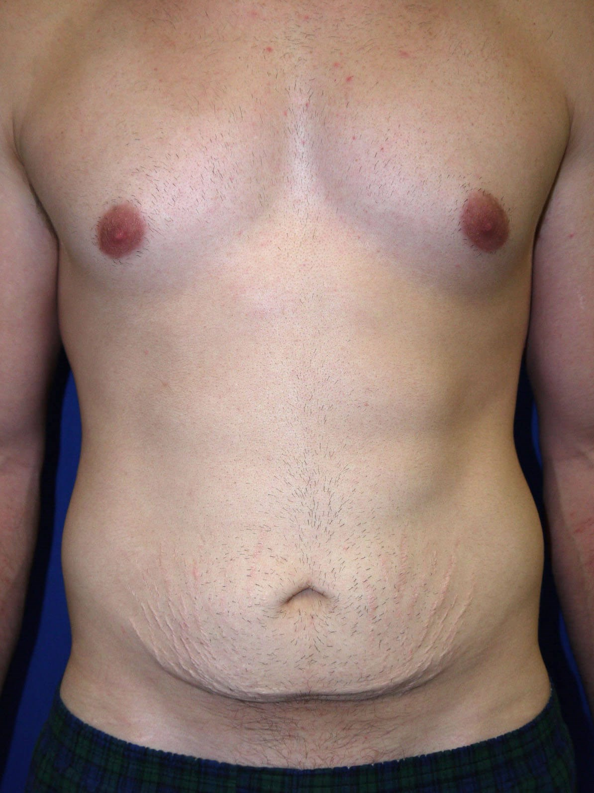 Before Tummy Tuck After Weight Loss Surgery - Front View