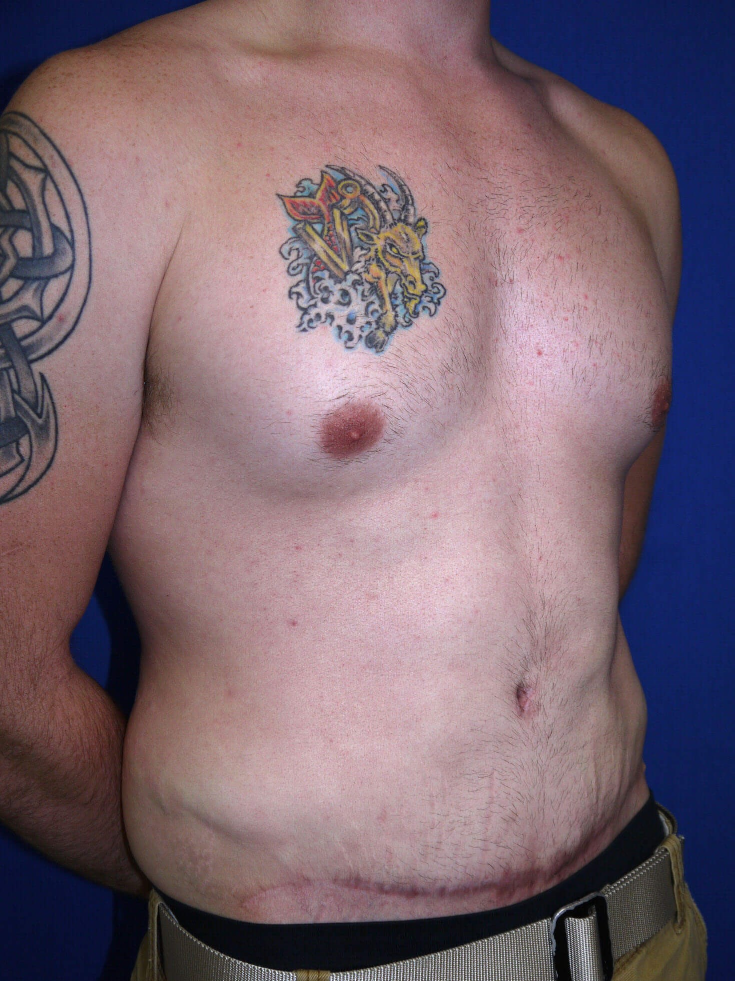 After Tummy Tuck After Weight Loss Surgery Right Oblique View - Right Oblique View