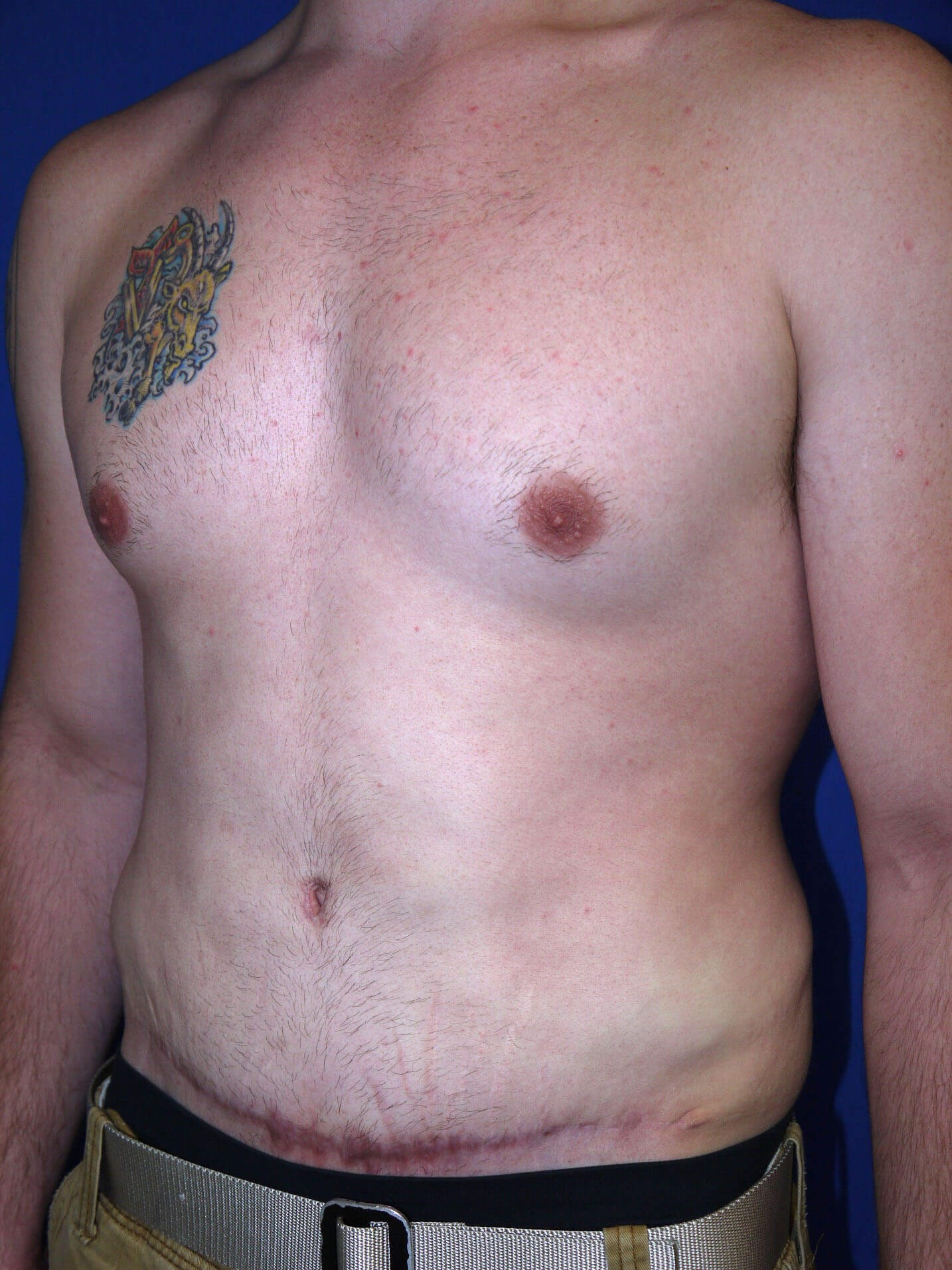 After Tummy Tuck After Weight Loss Surgery Left Oblique View - Left Oblique View