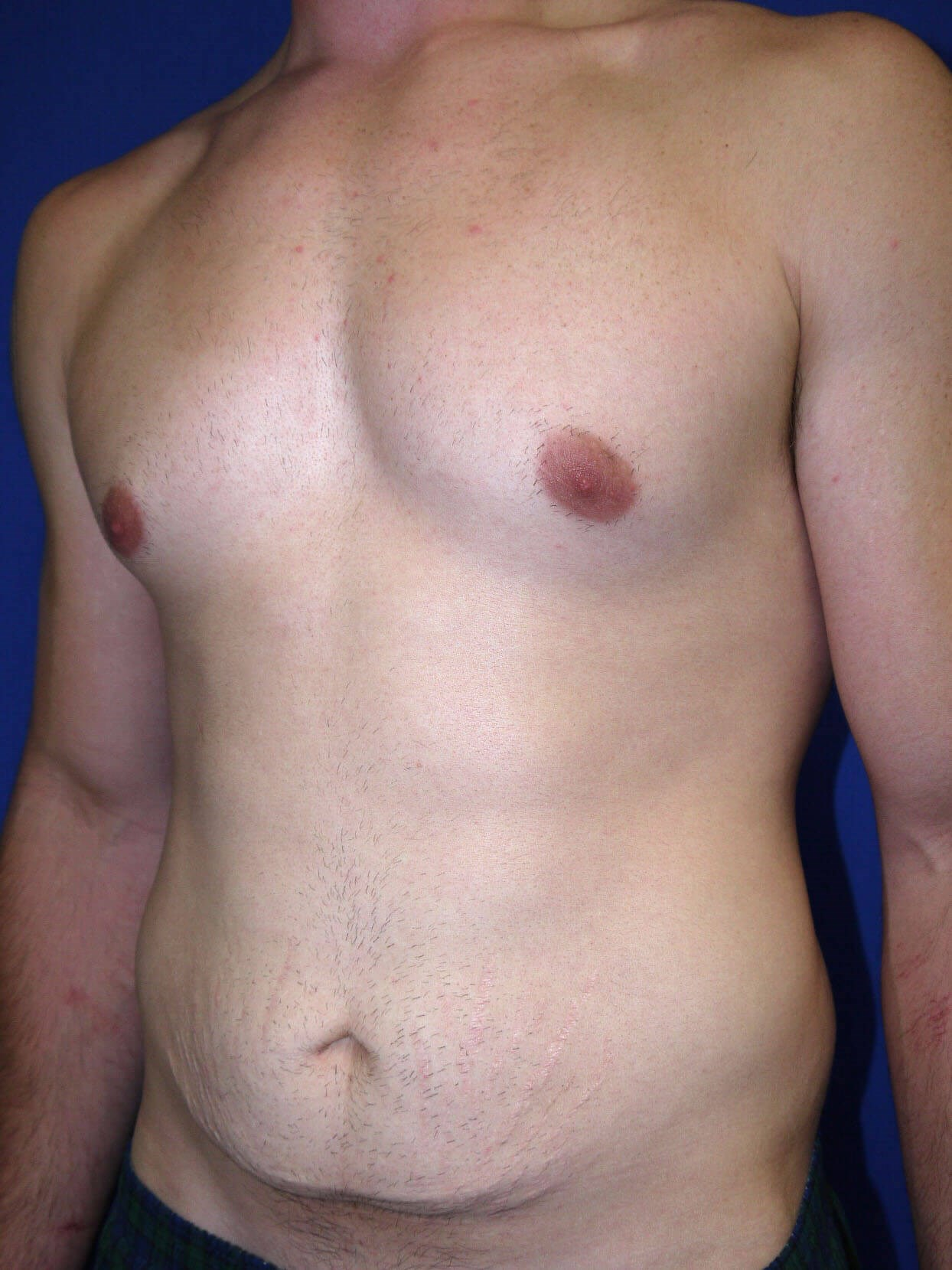 Before Tummy Tuck After Weight Loss Surgery Left Oblique View - Left Oblique View