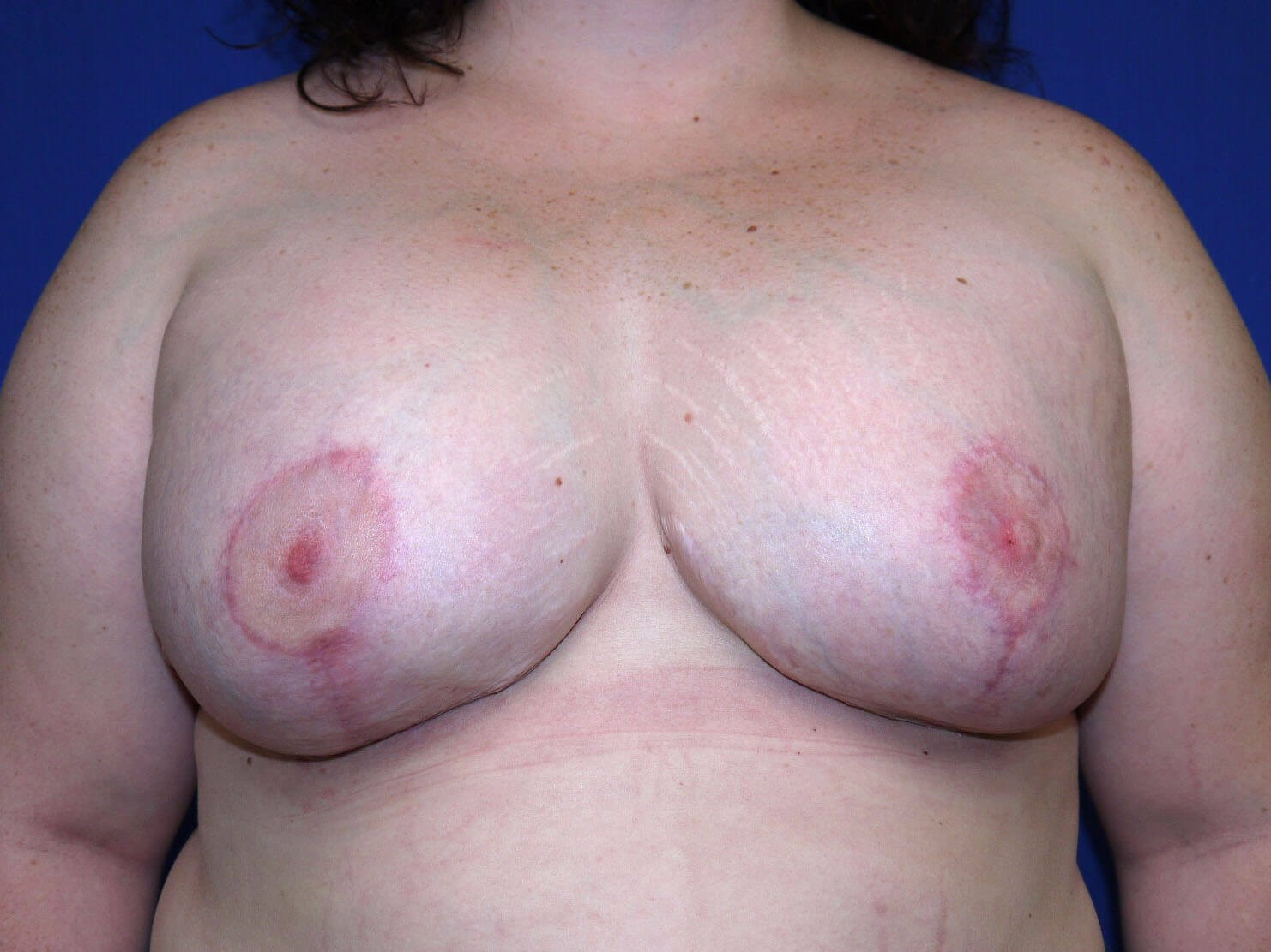 After breast revision - Front View - Front View