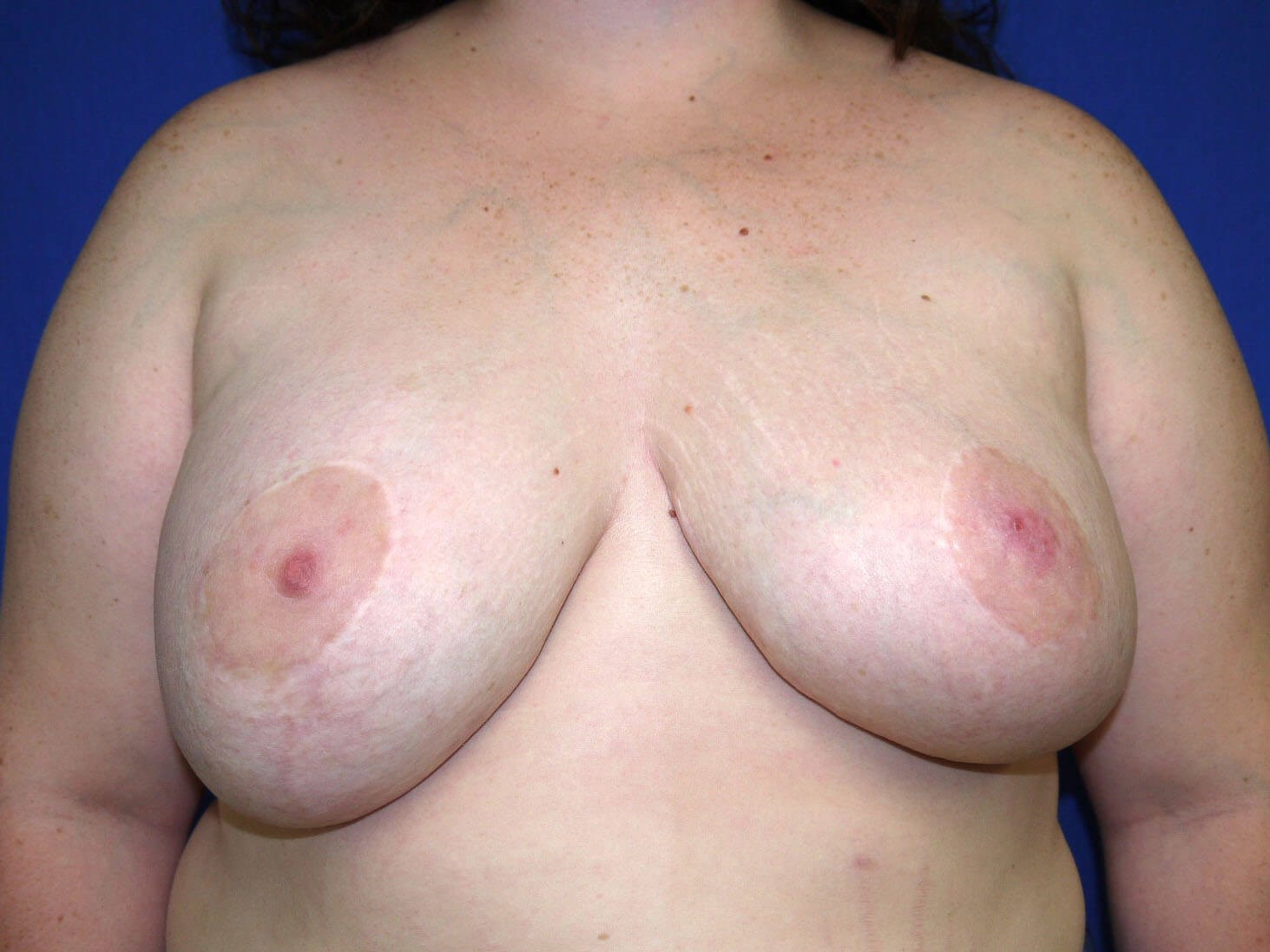 Before breast revision - Front View - Front View