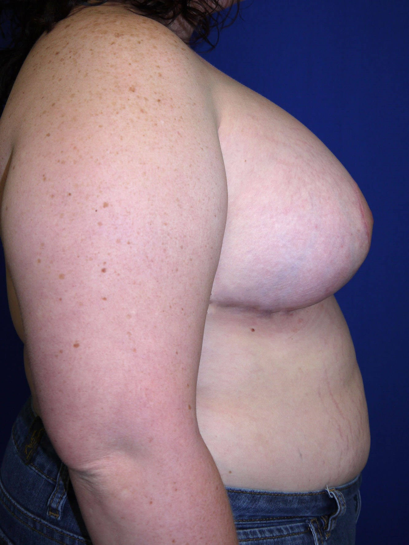 After breast revision - Right Side - Right Side