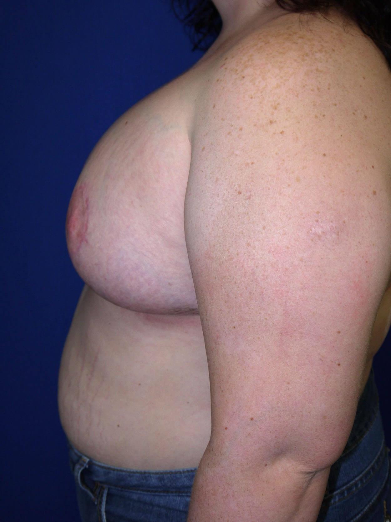 After breast revision - Left Side - Left Side