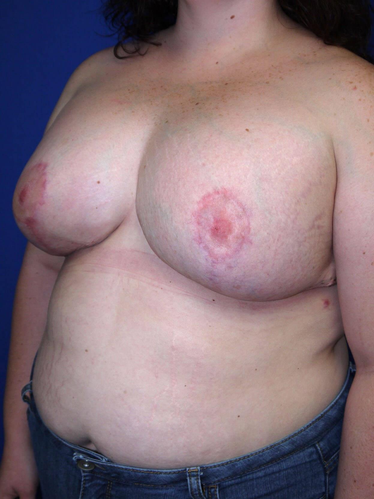 After breast revision - Left Oblique Side - Left Oblique View