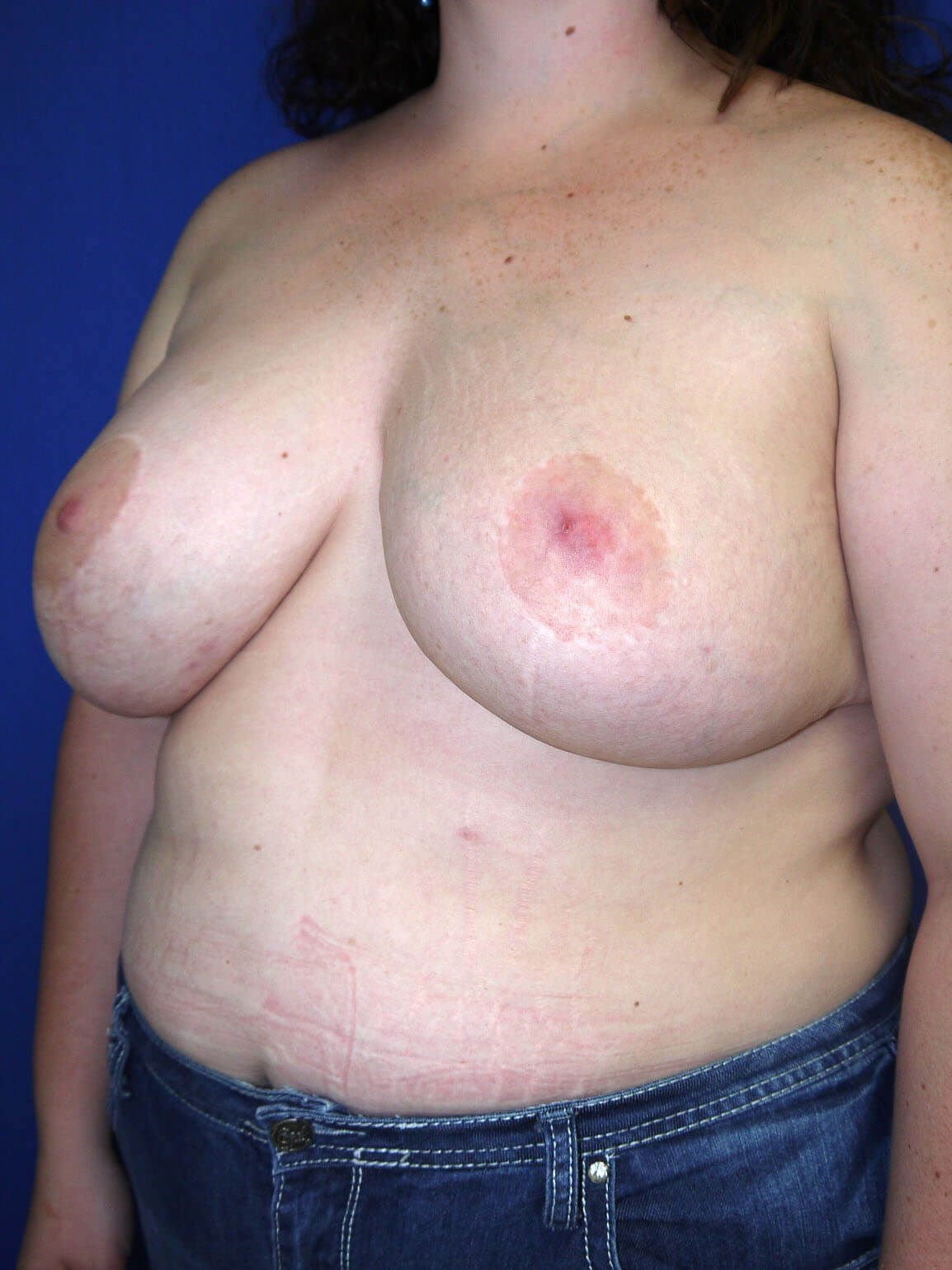 Before breast revision - Left Oblique Side - Left Oblique View