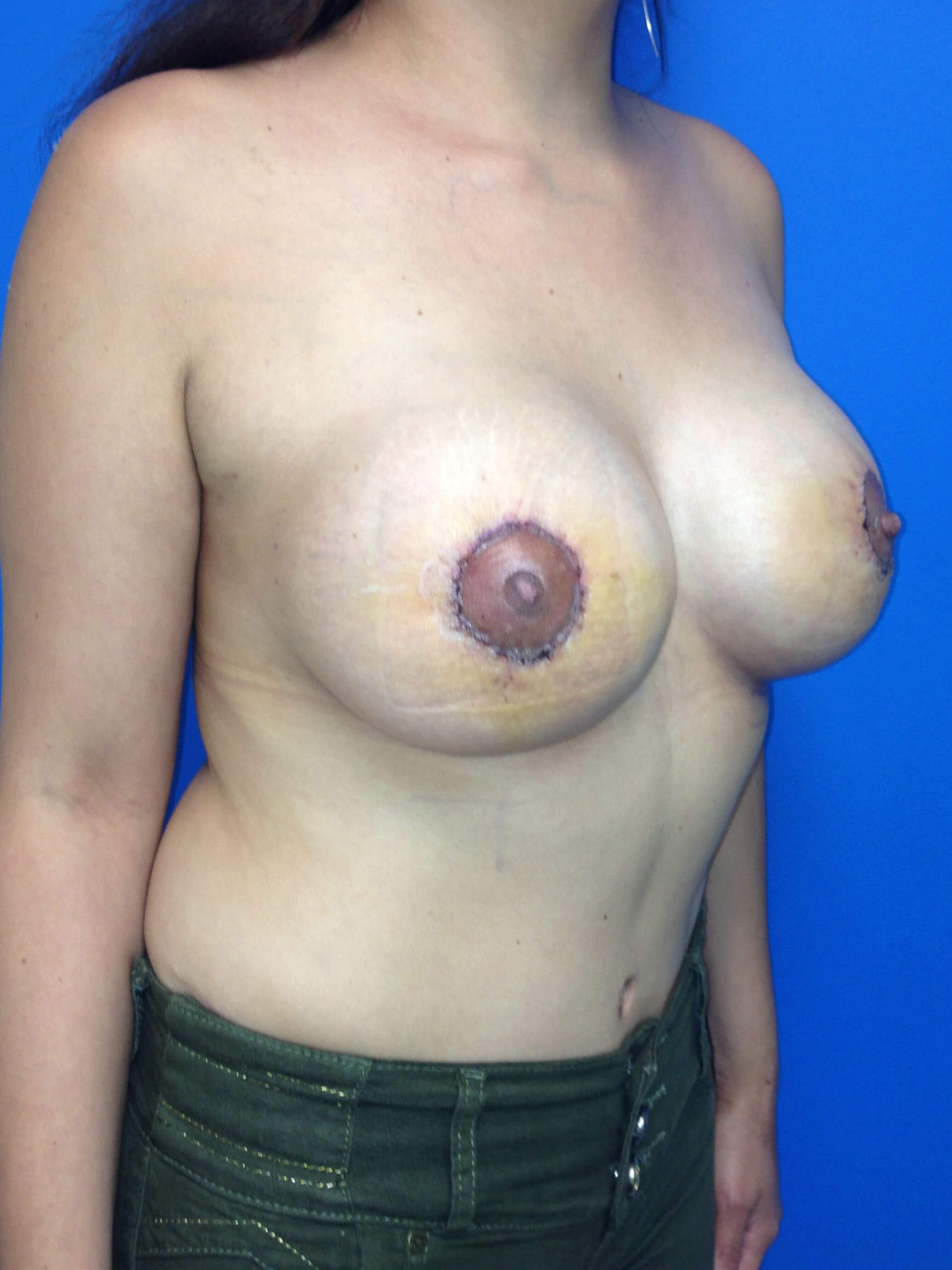 Breast Augmentation After - Right Oblique View