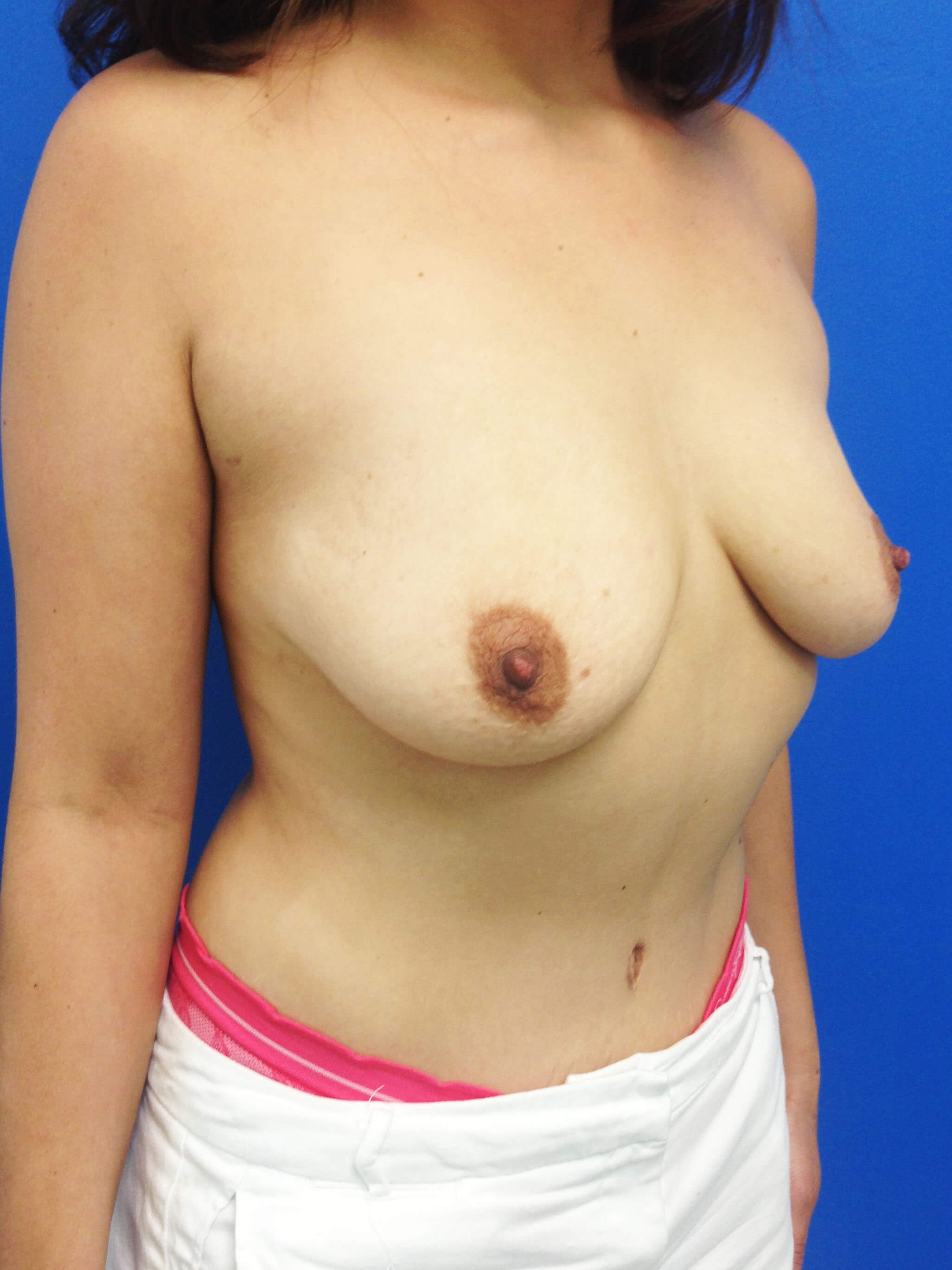 Breast Augmentation Before - Right Oblique View